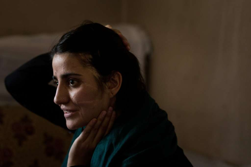 Forced Child Marriage … an Afghan Tragedy